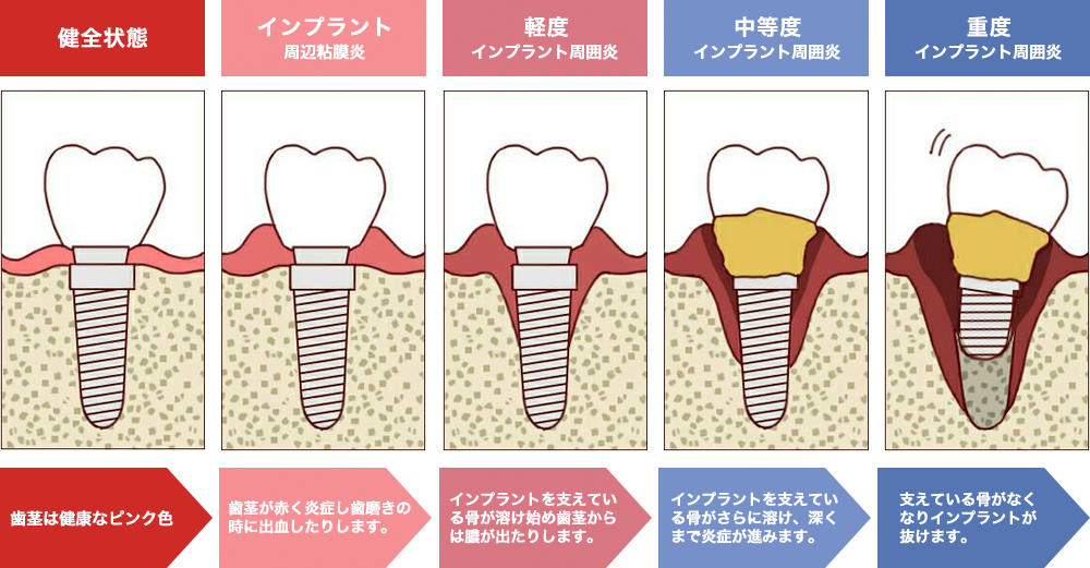 健全な歯茎からインプラント周囲炎になった歯茎までの歯茎の状態の解説