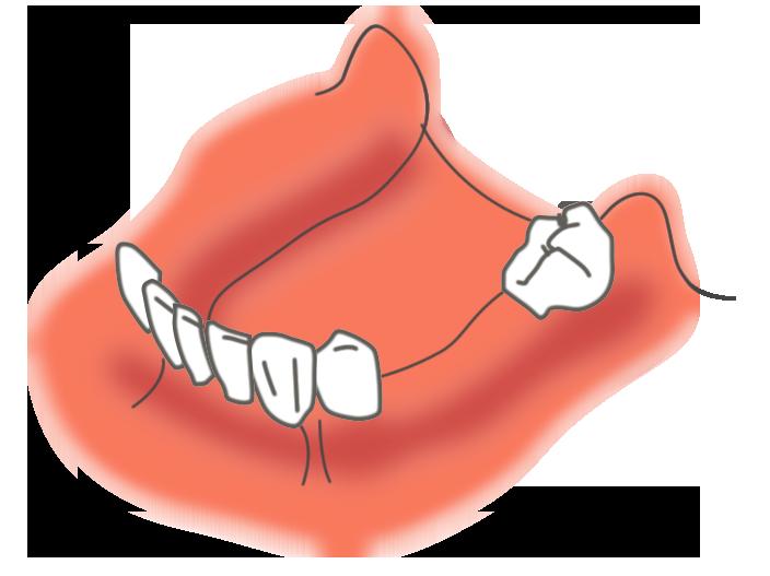 複数の歯が抜けた状態