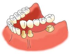 歯が2本抜けた状態でのブリッジ治療