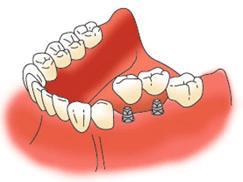 歯が2本抜けた状態でのインプラント治療