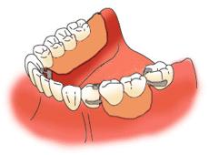 多数の歯が抜けた状態での入れ歯治療