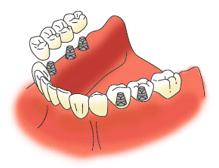 歯が複数抜けた状態でのインプラント治療