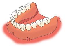 すべての歯が抜けた状態での入れ歯治療