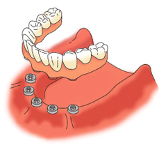 すべての歯が抜けた状態でのインプラント治療