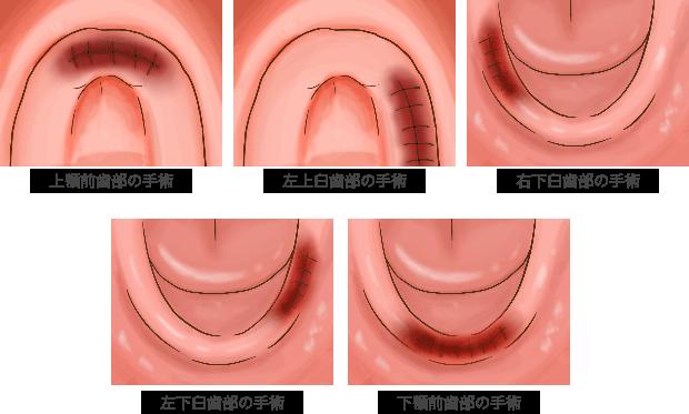 従来の治療法は、上顎下顎それぞれ少しずつ治療を行います。