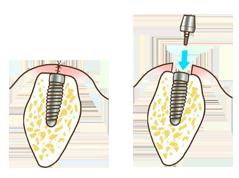 従来の治療法、歯茎を切開し、アバットメントを装着
