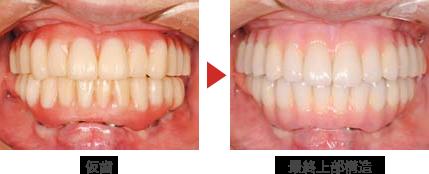 従来の治療法、仮歯から最終的な歯に変更します。