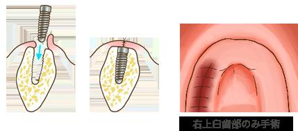 従来のインプラント治療でのインプラント体の埋入