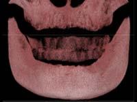 一般的な顎の骨量