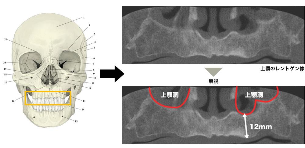 骨量が十分にある方の上顎のレントゲン画像
