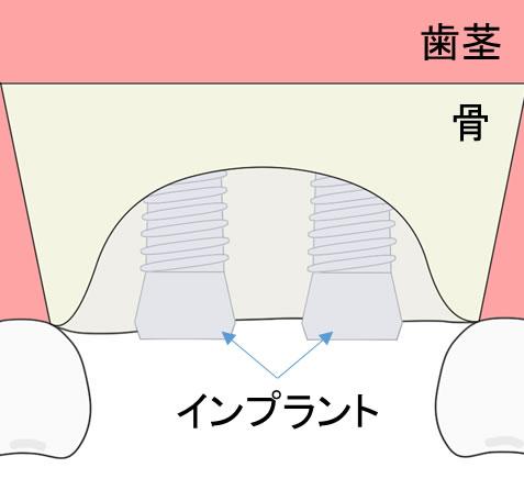 GBRの治療の流れ、インプラントの位置を適切な位置に入れる画像