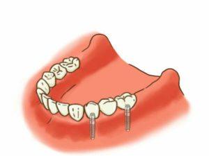 歯を3本連続して欠損している場合の治療イラスト