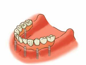 すべての歯を失った場合のインプラント治療イラスト