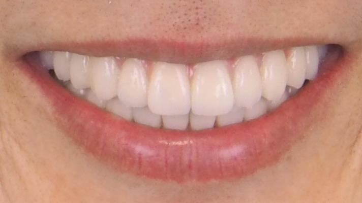本歯の装着