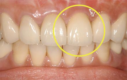 歯肉形成写真治療後