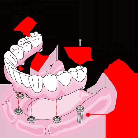 少数のインプラントでたくさんの歯を固定します。